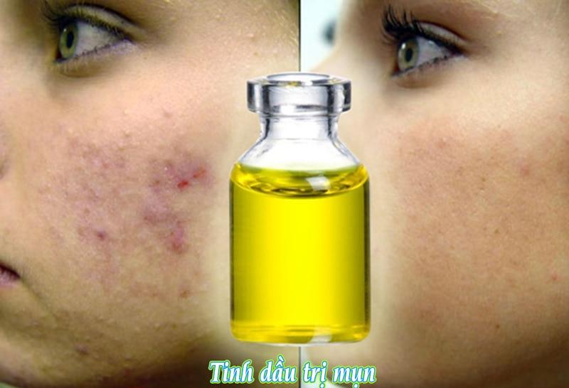 tinh dầu có tính kháng khuẩn trị mụn acnes